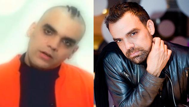 imagen El antes y después de tus artistas favoritos (FOTOS)
