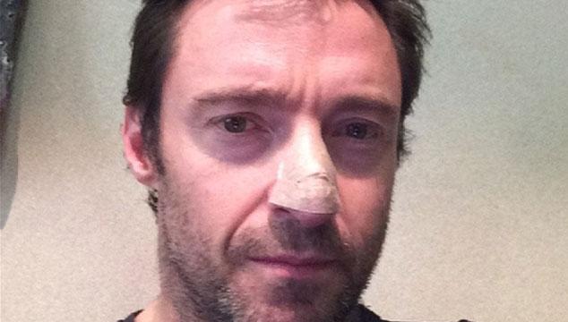 imagen Hugh Jackman revela que tiene cáncer de piel